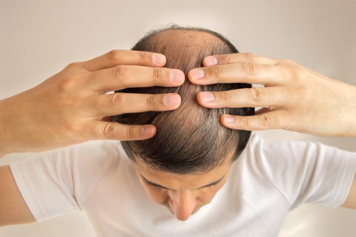 Hair Loss Medication